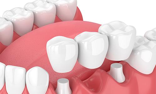 なるべく歯を削らない治療「ドックスベストセメント」