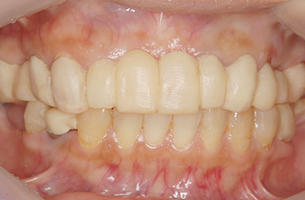 48歳女性 仮歯を装着した状態