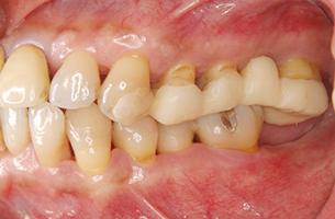 39歳男性 仮歯を装着した状態