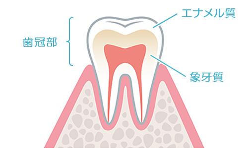 虫歯の症状について