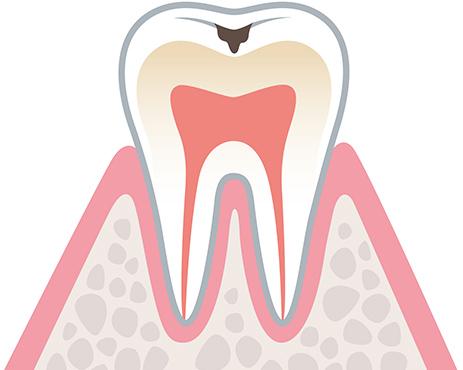 虫歯の初期症状