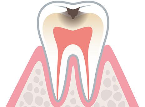 虫歯の末期症状