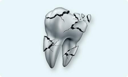 虫歯より怖い歯周病